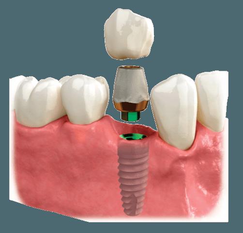 ugradnja implantata