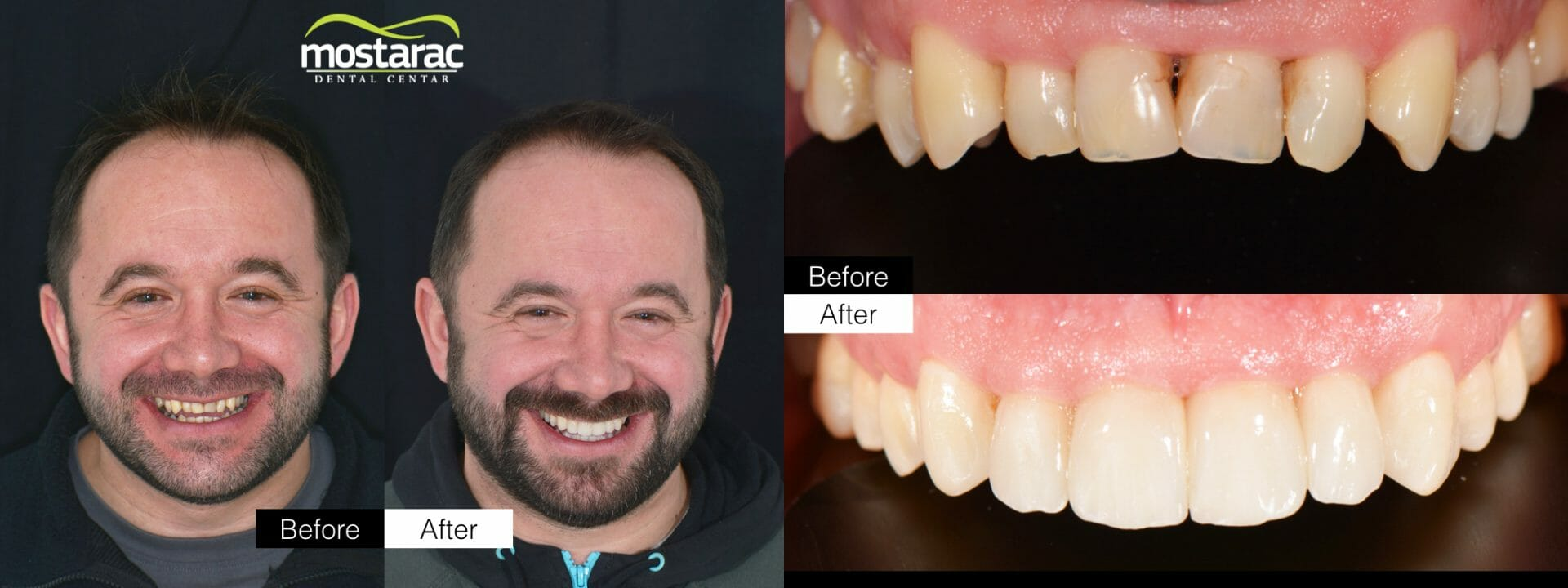 ljuskice za zube aparatić za zube