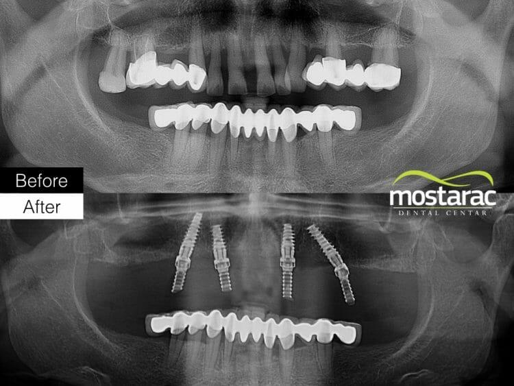 all on 4 ortopan