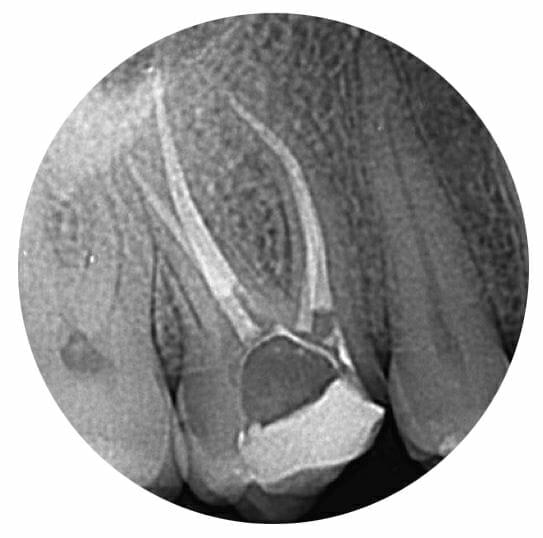 endodoncija rentgenska slika