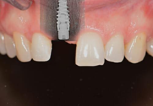 ugradnja implantata nobel bocare
