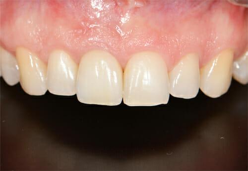 zubni implantat Nobel biocare