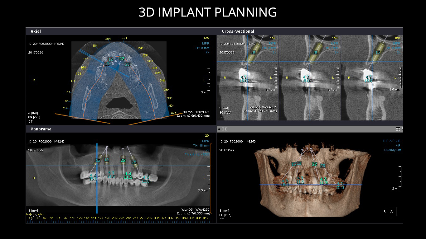 zubn implantati all on 4