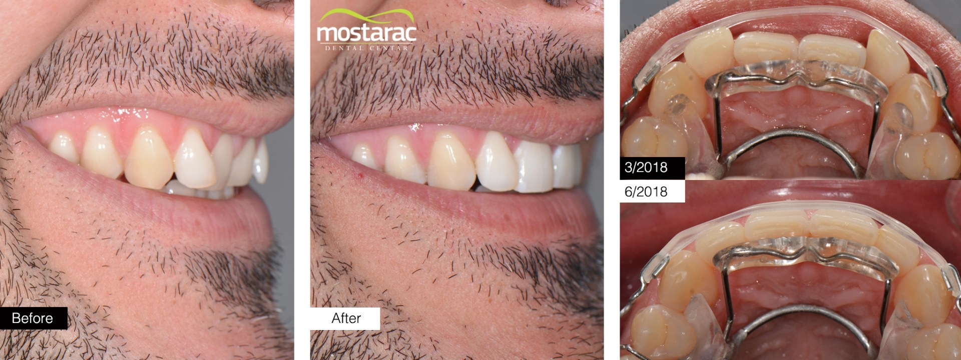 aparatic za zube prije poslije