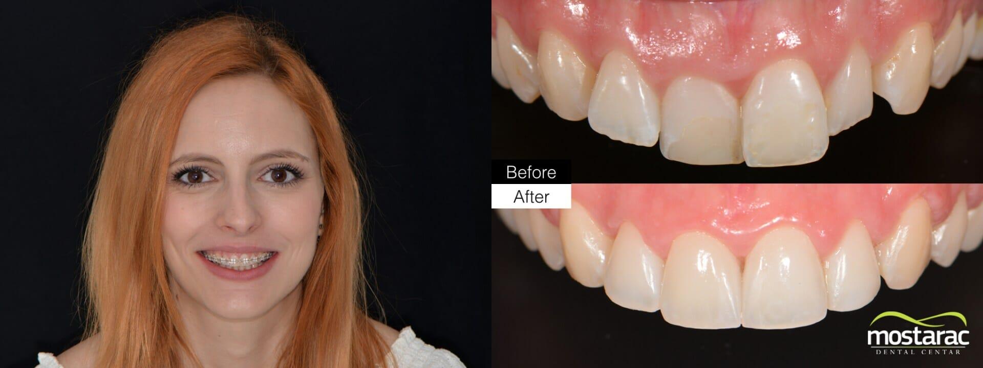 ortodoncija prije poslije