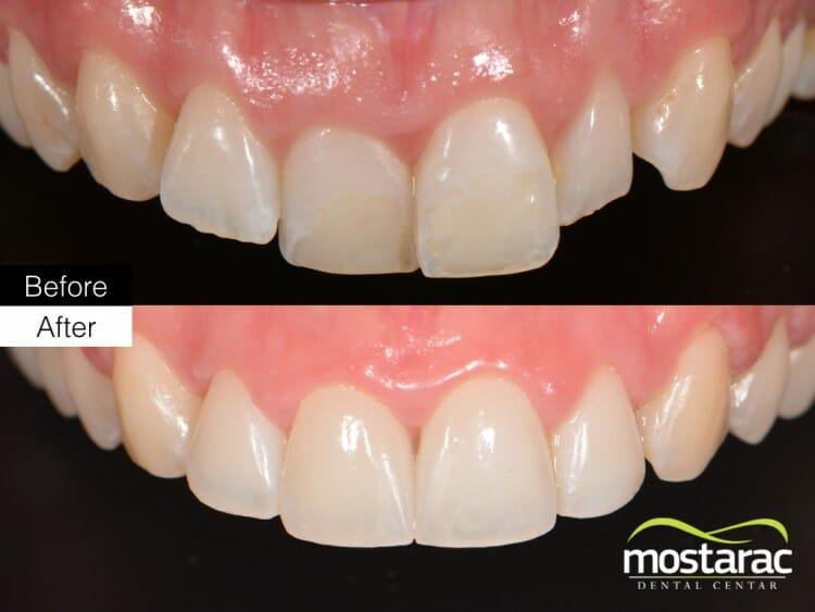 Ljuskice za zube veneers aparatić za zube ortodont zagreb