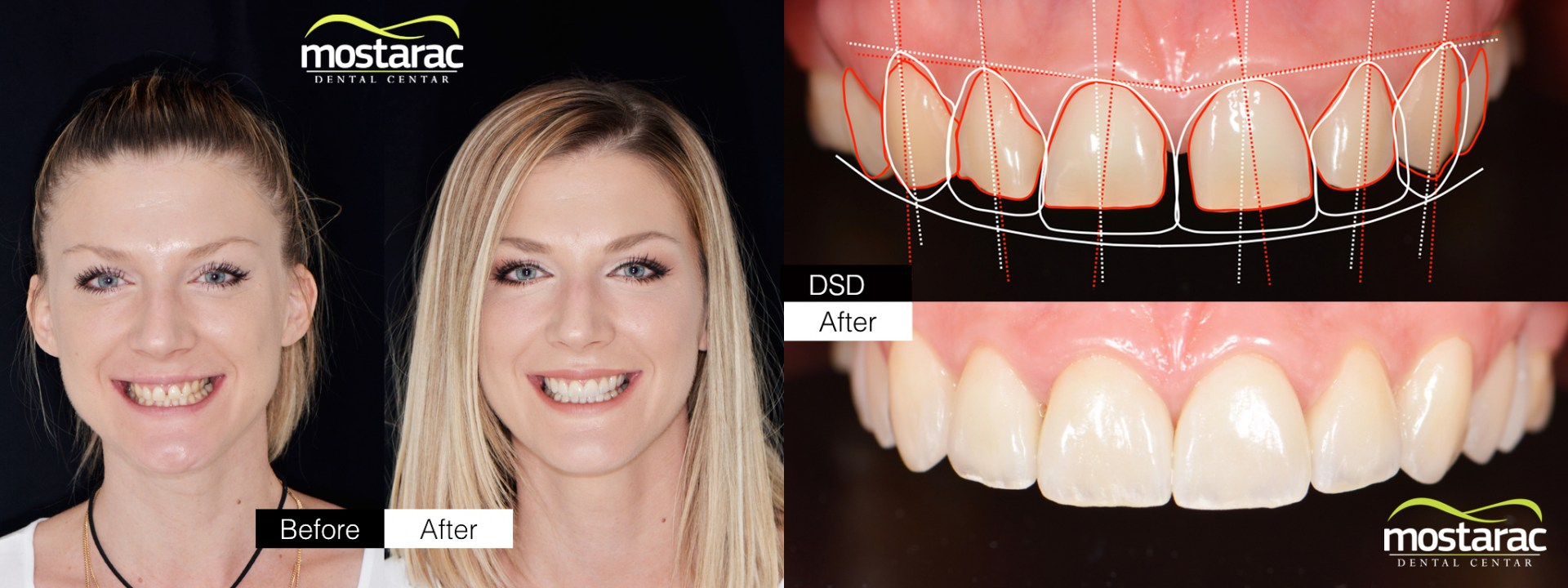 smile design by dr. Mostarac
