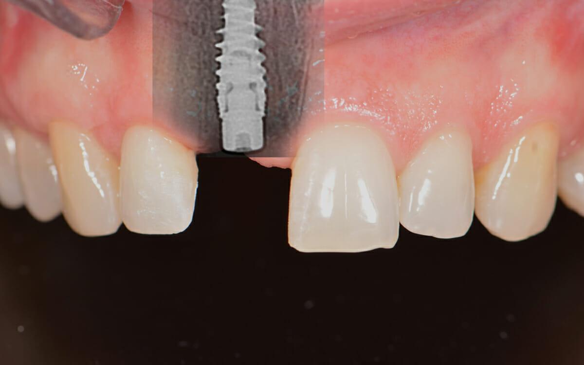 zubn implantati