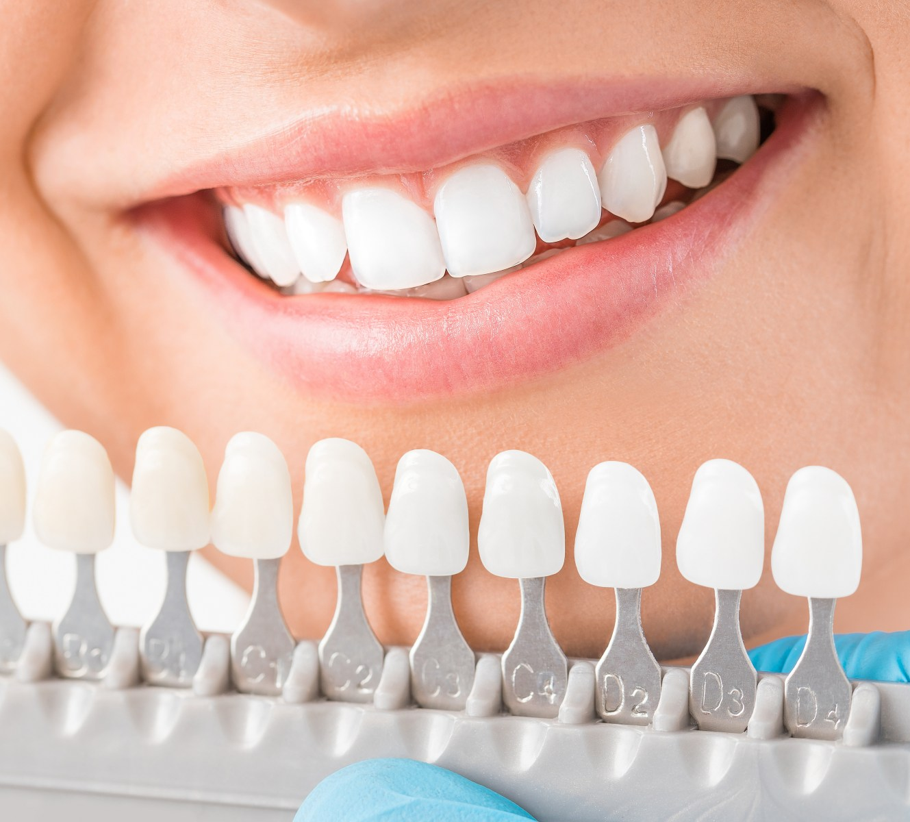 Ljuskice za zube veneers