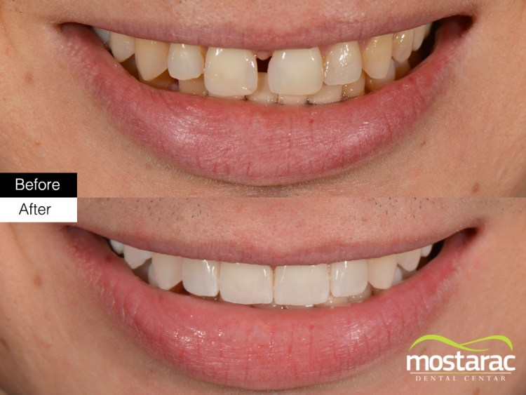 Ljuskice za zube veneers aparatić za zube