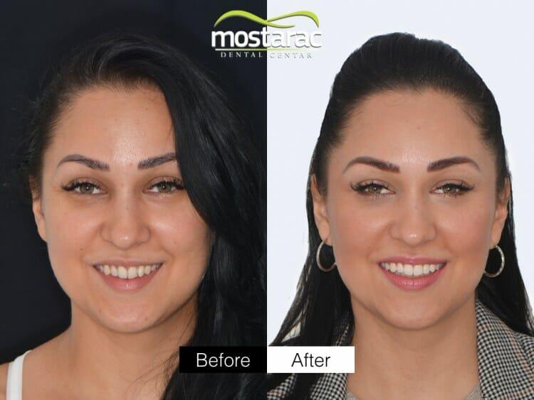 aparatic za zube osmijeh prije poslije