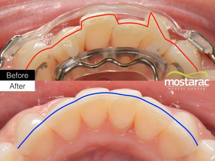 aparatić za zube prije poslije