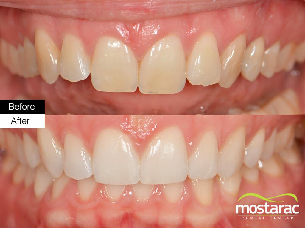 izbjeljivanje zuba prije i poslije