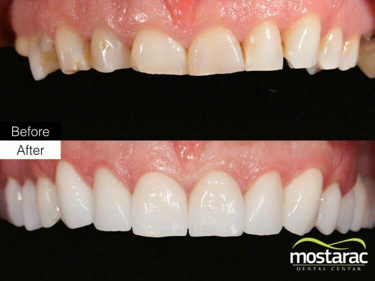 zubi prije poslije