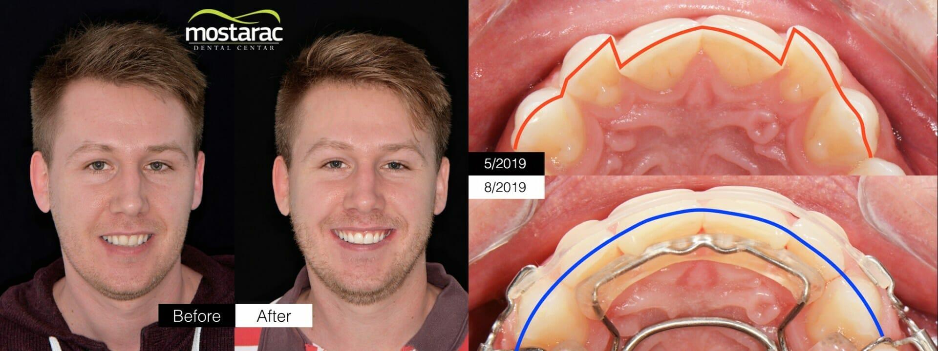 ravni zubi