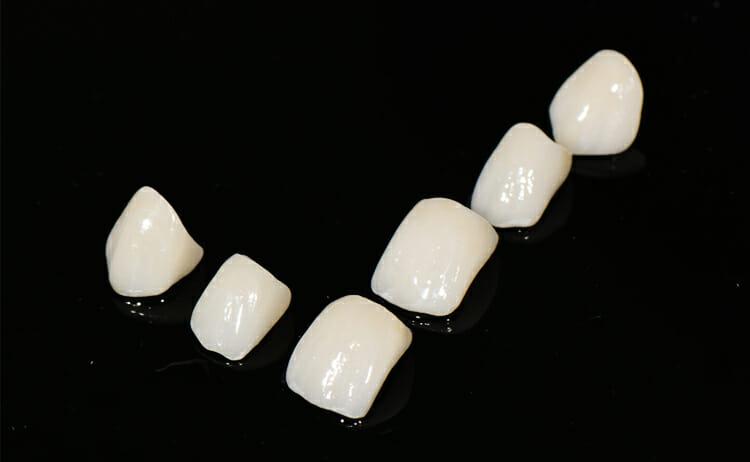 bezmetalne-ljuskice-za-zube-dental-veneers