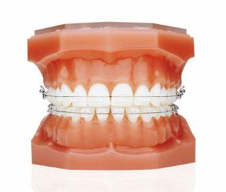 pravo rješenje za ravne zube